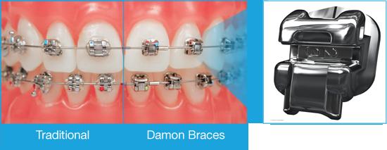 choose-compare-braces