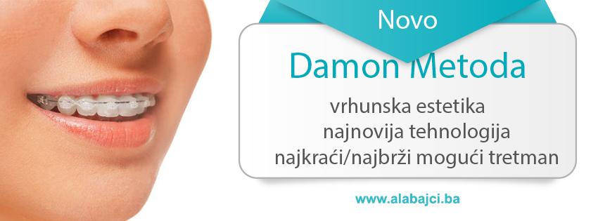 alabajci-damon-metoda